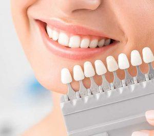 teeth whitening homestead