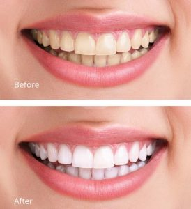 homestead teeth whitening